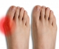 Bunion Treatment Singapore | Foot Surgery | SBF Sports & Hand Centre